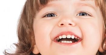 Vernici al fluoro su denti bimbi che non usano spazzolino