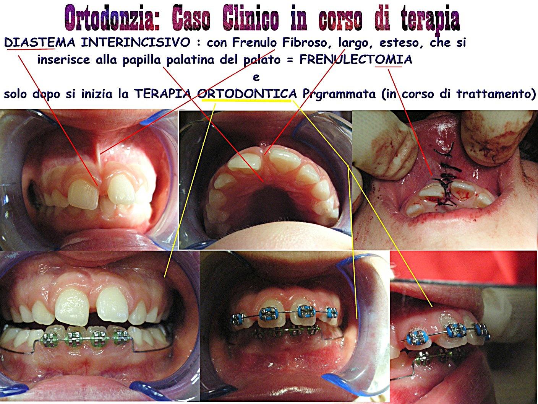 Fotogrammi di Terapie della Dr.ssa Claudia Petti PEDODONZIA CHIRURGICA in alto (Frenulectomia) e ORTODONZIA in basso - Alcune fasi della terapia