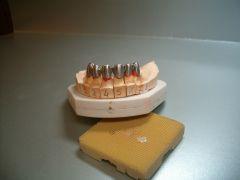 tecnico-dentale