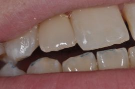 A.G. Dental