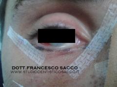 Dott. Francesco Sacco