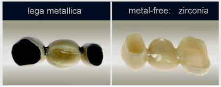 Risultati immagini per corone zirconio diffrenza  ceramica