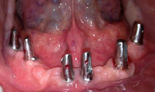 analisi prechirurgica