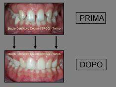 Caso di agenesia: Ortodonzia e Ricostruzioni Conservative