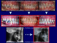 Caso clinico di Chirurgia Ortognatica trattato