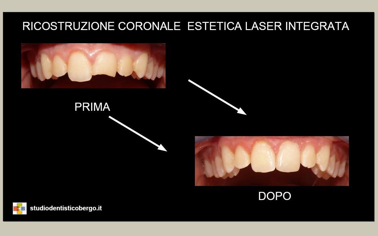 Ricostruzione Coronale Estetica Laser Integrata (Laser Erbium-Yag)