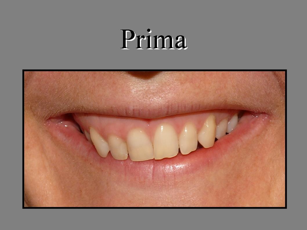 Laser in odontoiatria