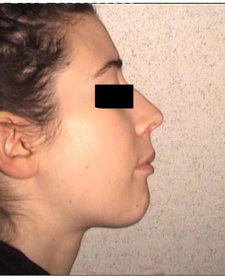 Trattamento ortodontico di una grave II Classe