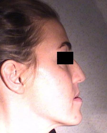 Trattamento ortodontico di un'inversione dentale
