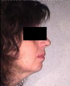 Trattamento ortodontico di un severo morso aperto anteriore
