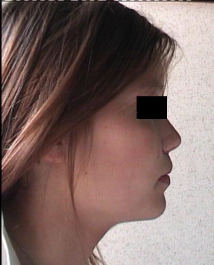 Trattamento 1a classe con numerosi diastemi