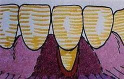 Recessioni gengivali: Lembo con doppia papilla (Bipapillare secondo tecnica di Goldman), in una grave terza classe di Miller