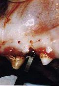 La rigenerazione parodontale guidata con membrana amniotica e colla di fibrina (tecnica personale) 3parte - Sperimentazione sul cane