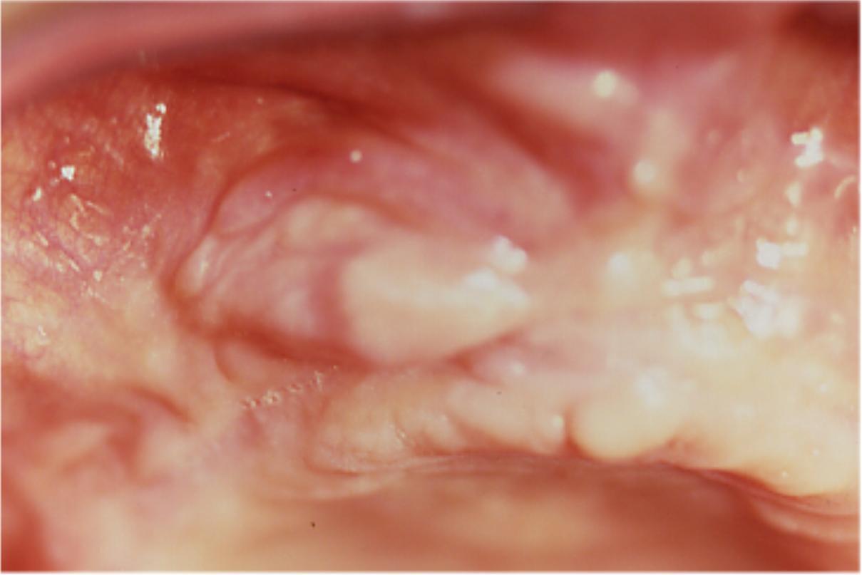 Fibroma, escissione chirurgica