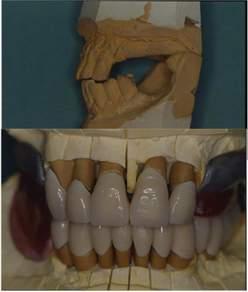 Riabilitazione orale completa, parodontale, implantologica e protesica, in un caso complesso pluridisciplinare, con Follow up di 19  anni. PRIMA PARTE: CHIRURGIA PARODONTALE, CHIRURGIA PREPROTESICA, CHIRURGIA IMPLANTOLOGICA.