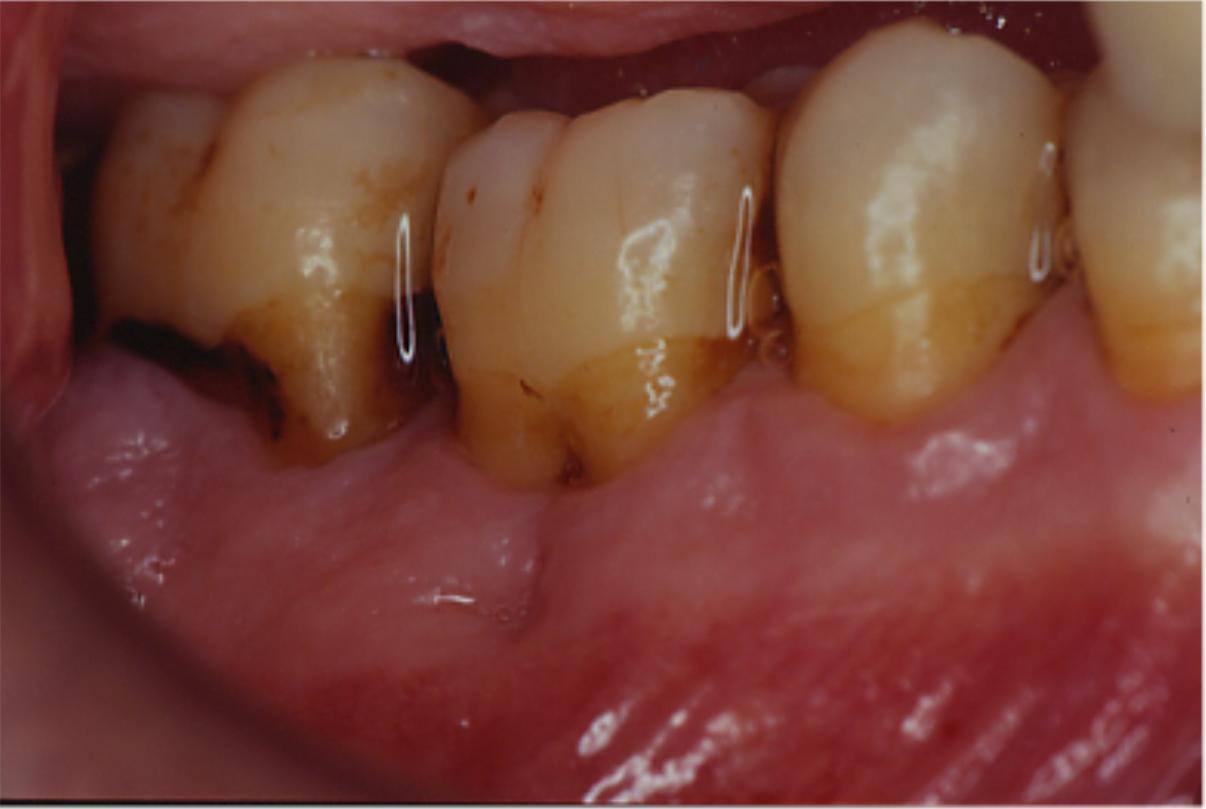 Chirurgia Ossea Parodontale con Membrane per la stimolazione del Parodonto profondo