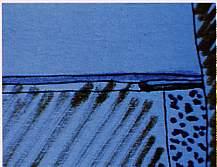 La rigenerazione parodontale guidata con membrana amniotica e colla di fibrina (tecnica personale) 1parte - Considerazioni Istologiche e Sperimentali
