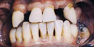 Riabilitazione parodontale e protesica completa