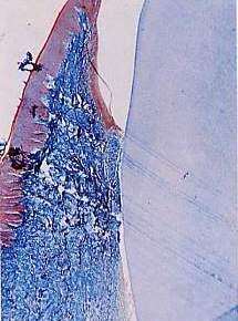 4parte - Studio Istologico la rigenerazione parodontale guidata con membrana amniotica e colla di fibrina (tecnica personale)