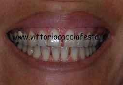 Ortodonzia Linguale Individualizzata