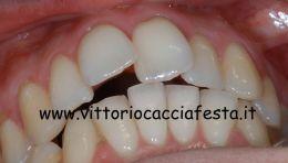 Trattamento di morso aperto e affollamento dentario in Ortodonzia Linguale