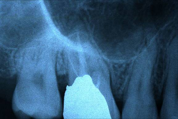 Frattura coronale chirurgia parodontale