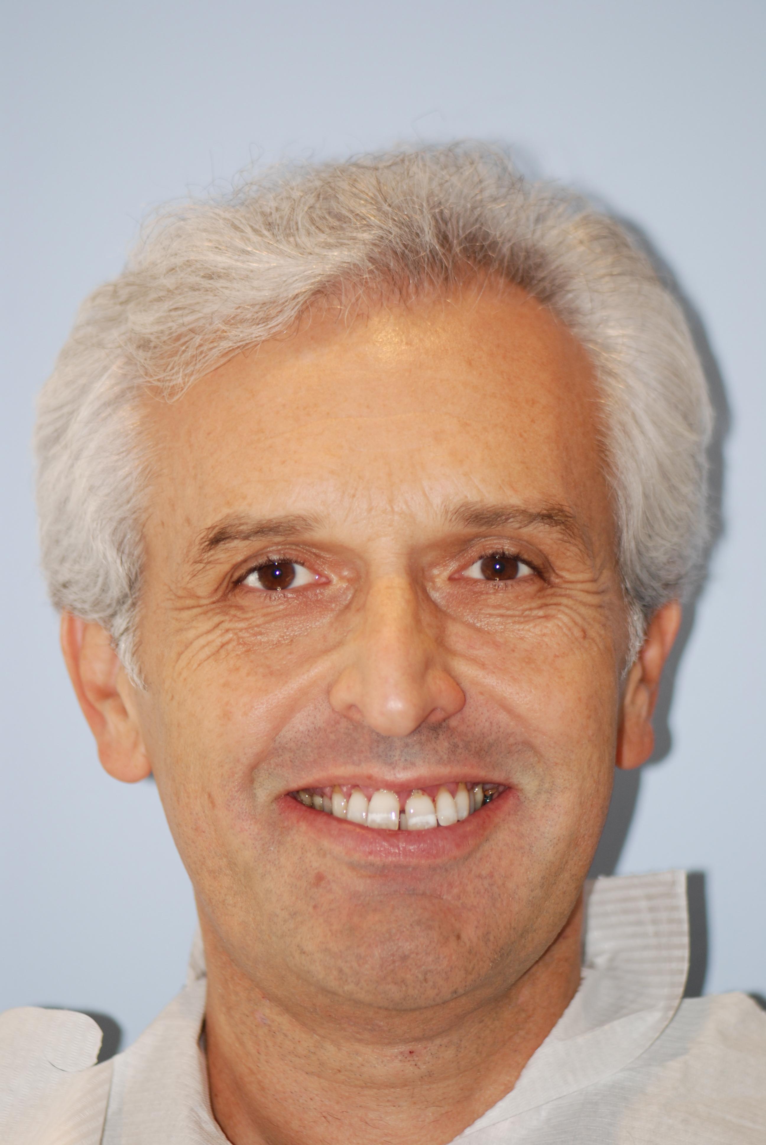 Ortodonzia pre-protesica