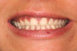 La bulimia e l'usura dentale: un caso clinico