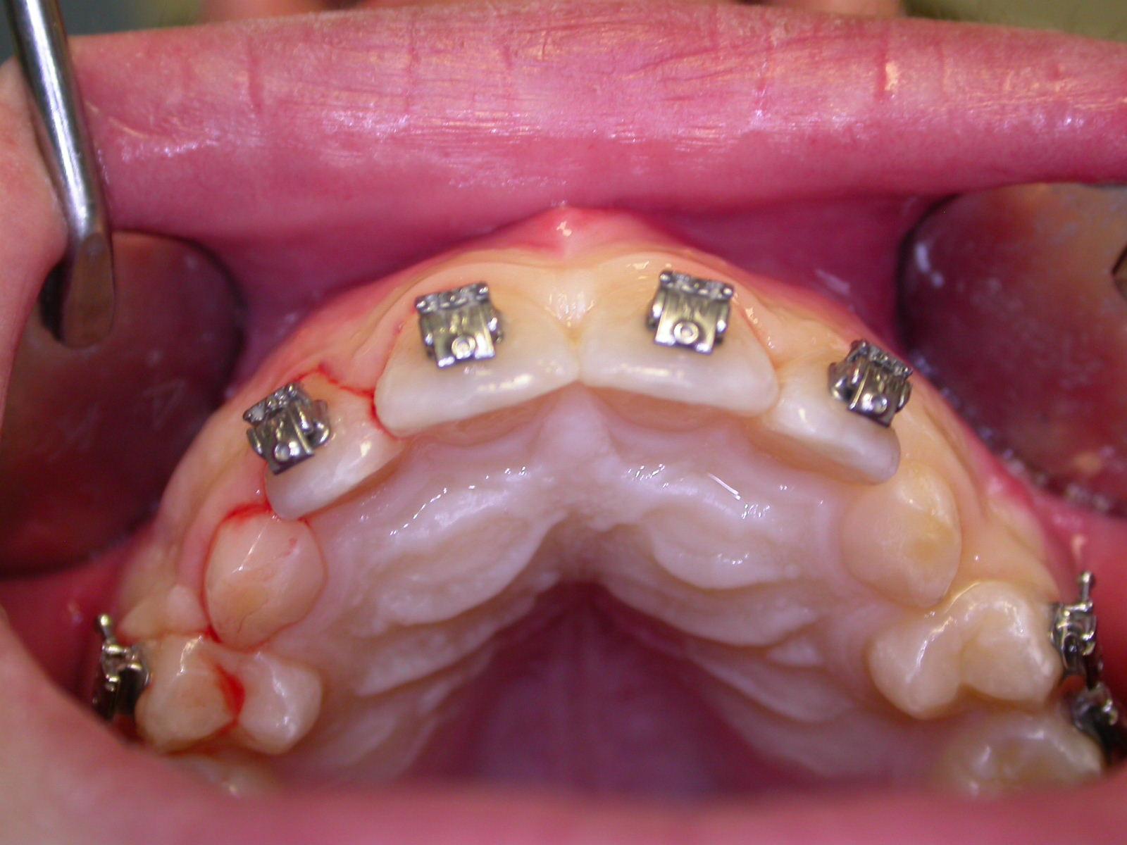 Estrusione chirurgica-ortodontica