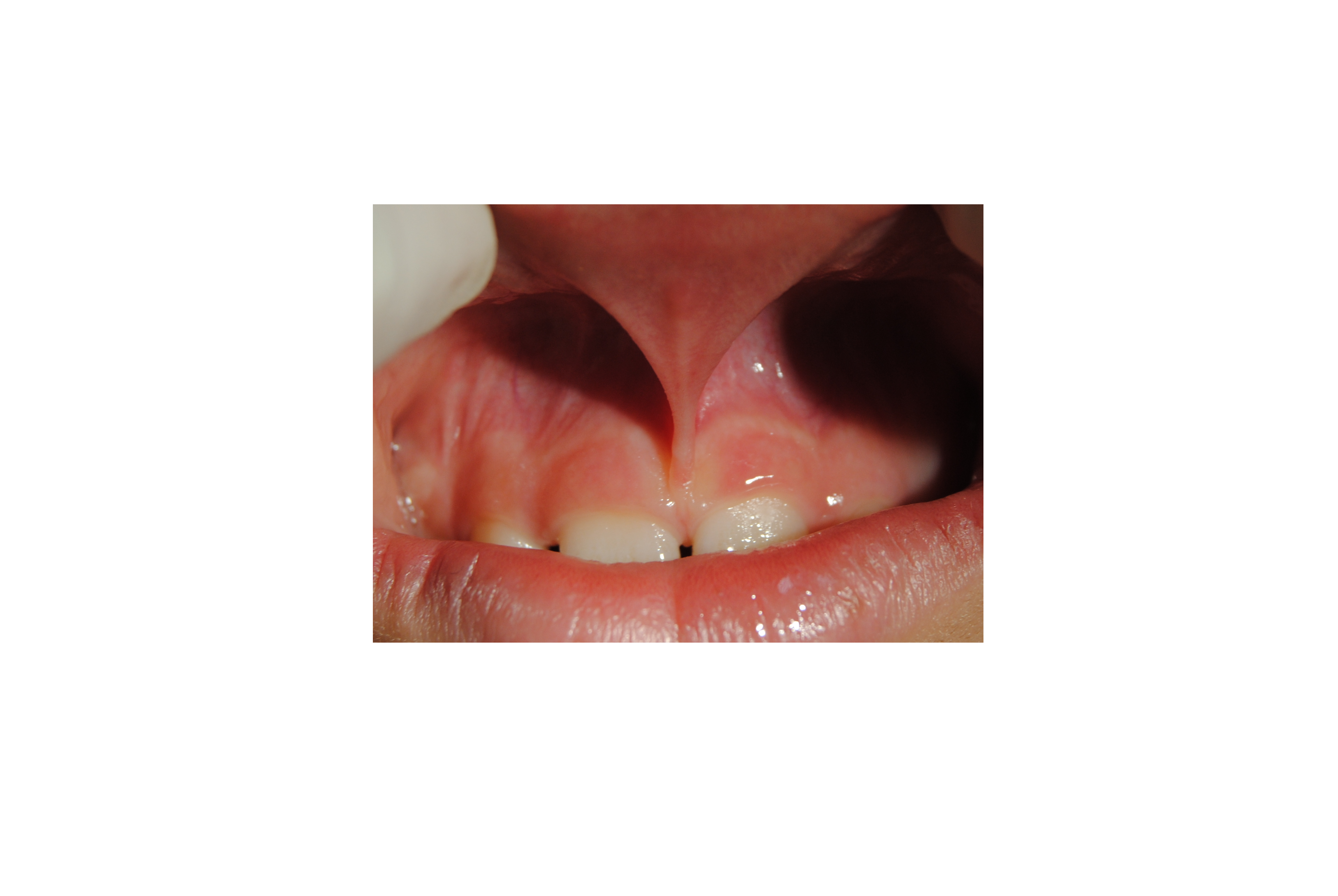 Frenulectomia Laser
