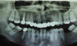 Impianti dentali in zona estetica con rigenerazione ossea.