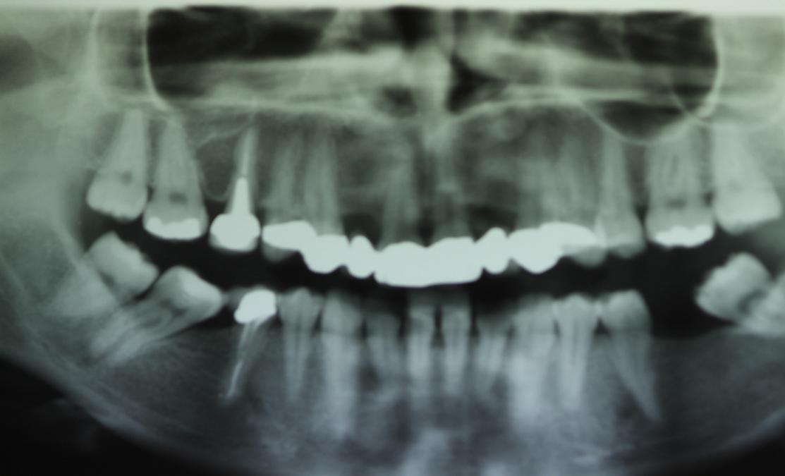Riabilitazione con rigenerazione ossea e impianti a livello degli incisivi laterali superiori.