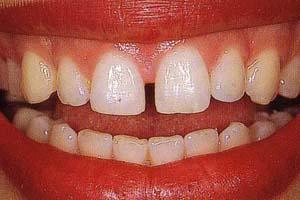 Estetica dei denti e del sorriso