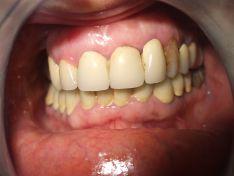 Recupero di elementi dentari