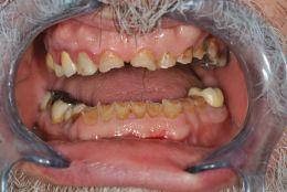 Ripristino di estetica e funzionalità in paziente con dentatura fortemente abrasa