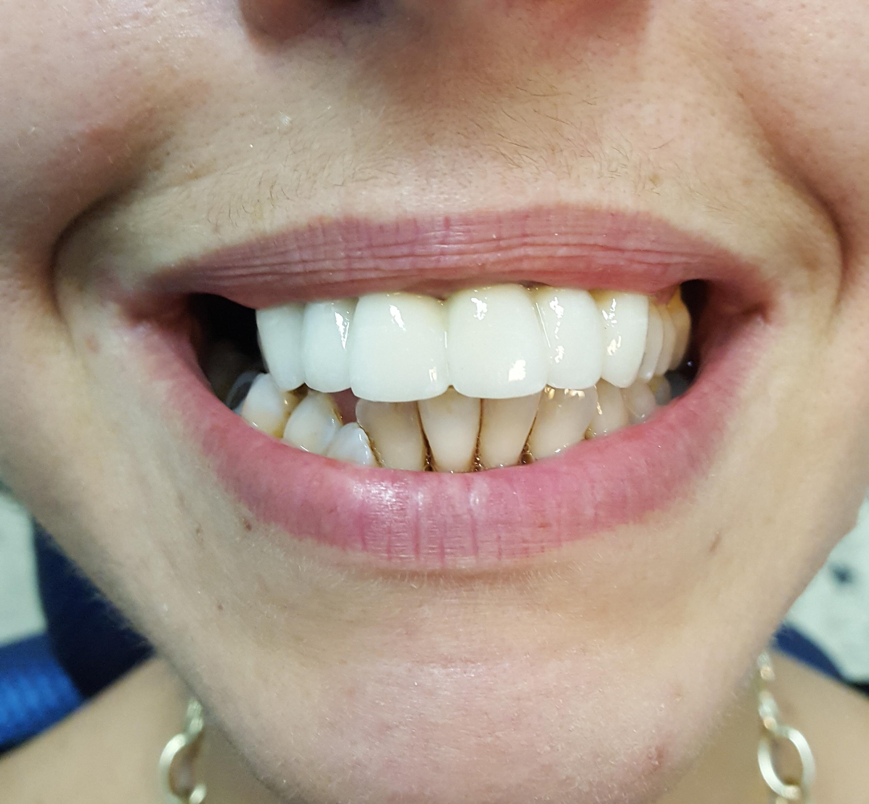 Cambiare aspetto si può iniziando dai denti