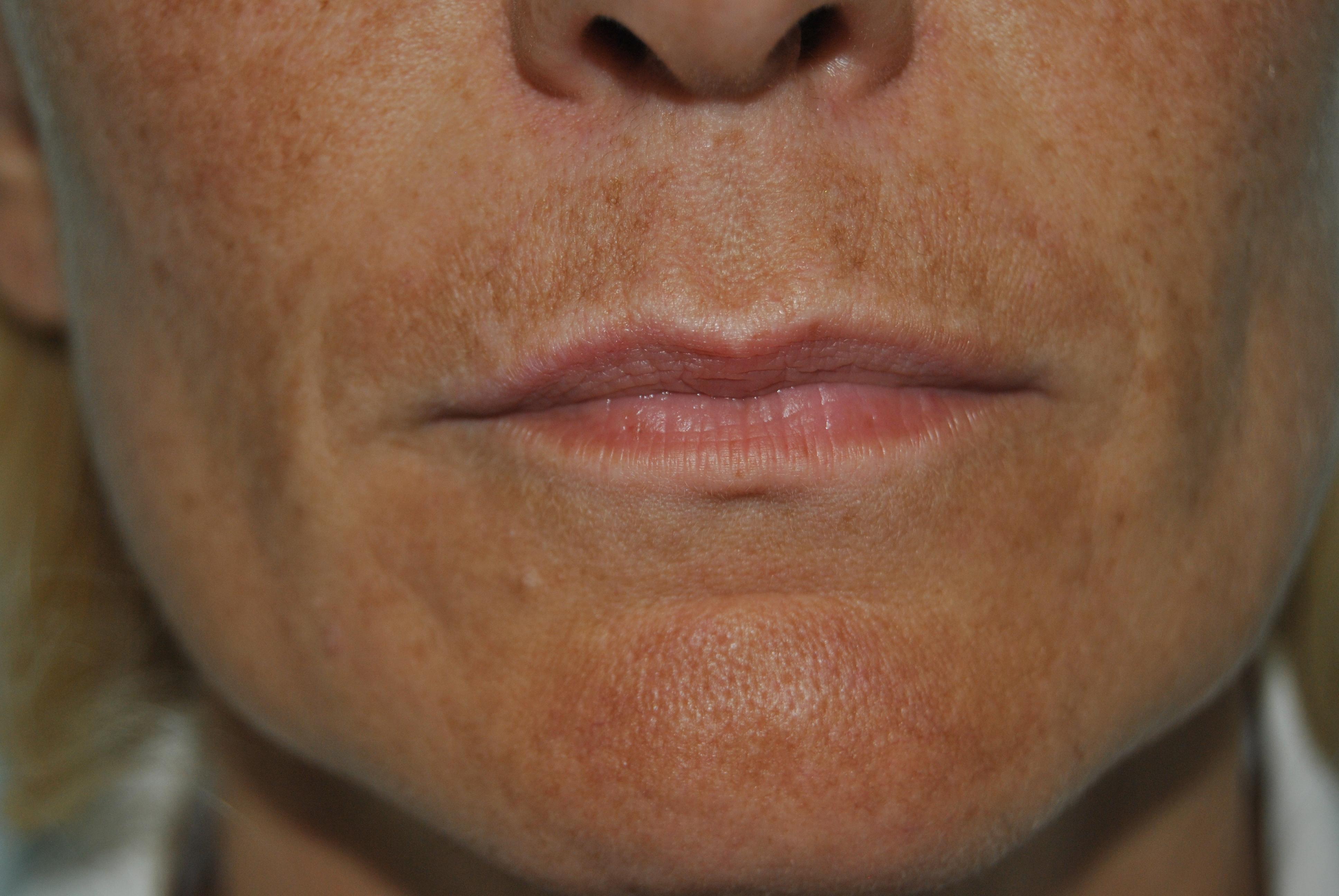 Estetica dei tessuti periorali a completamento di piani di cura odontoiatrici