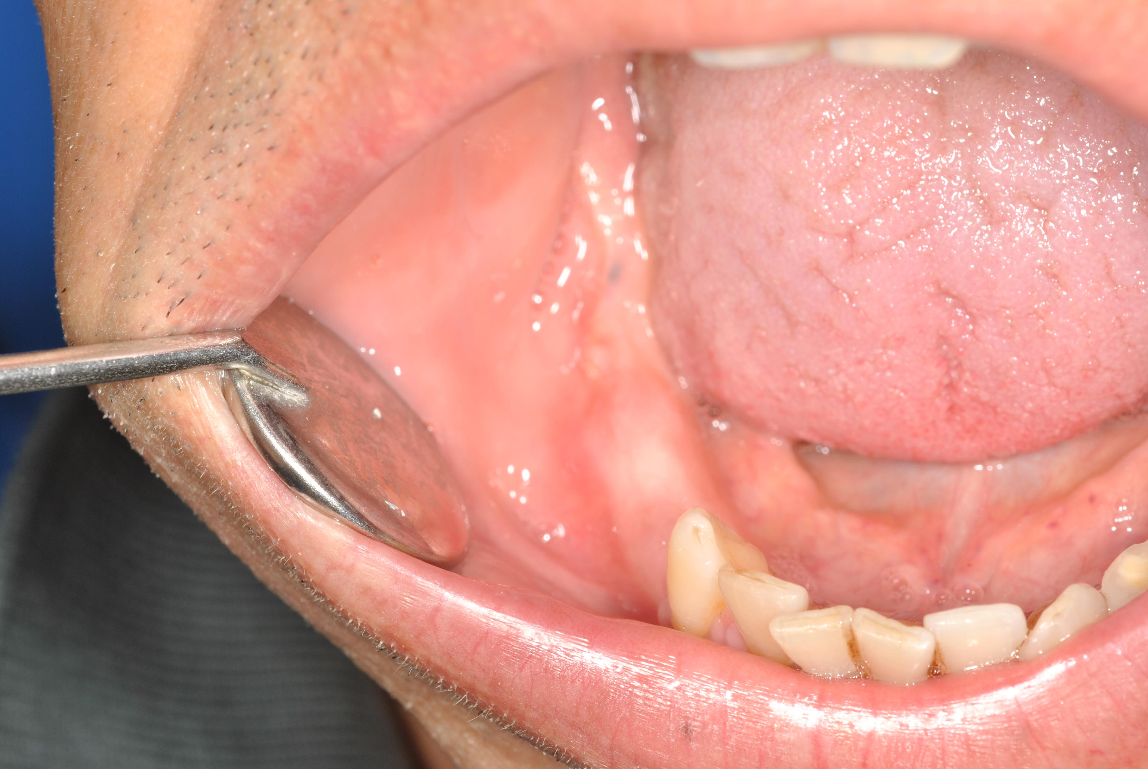 Chirurgia rigenerativa e implantologica simultanea