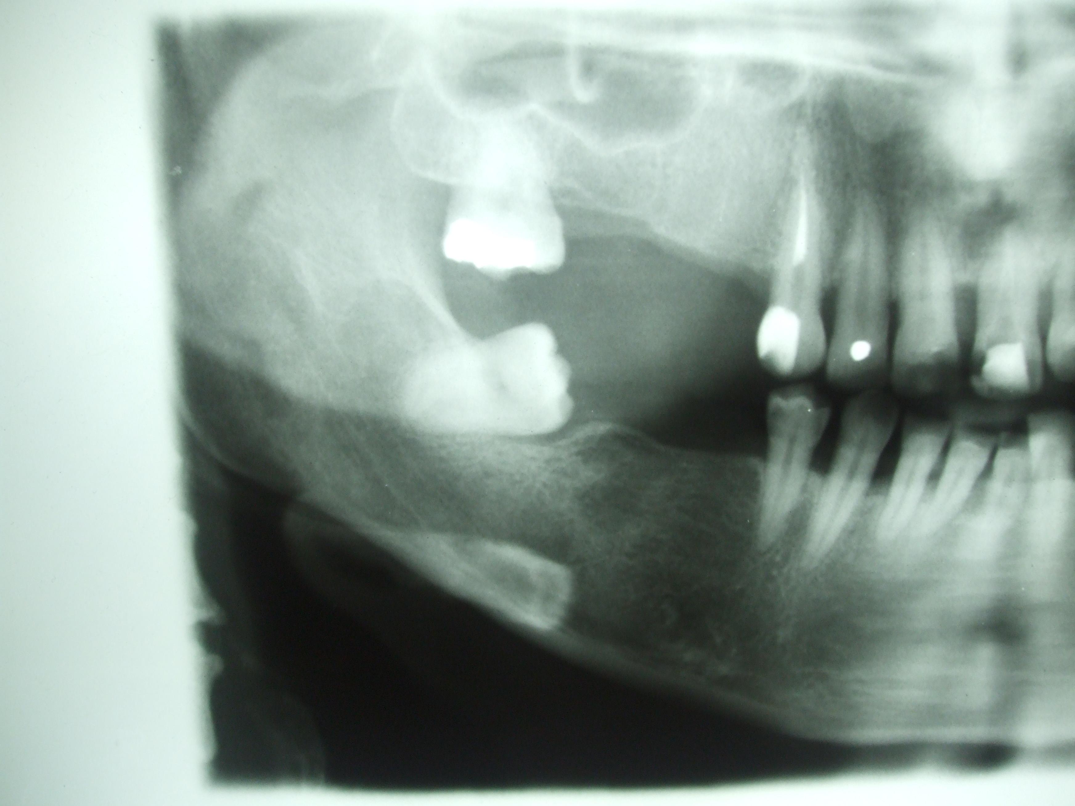 Estrazione di un dente del giudizio inferiore con Sonosurgery
