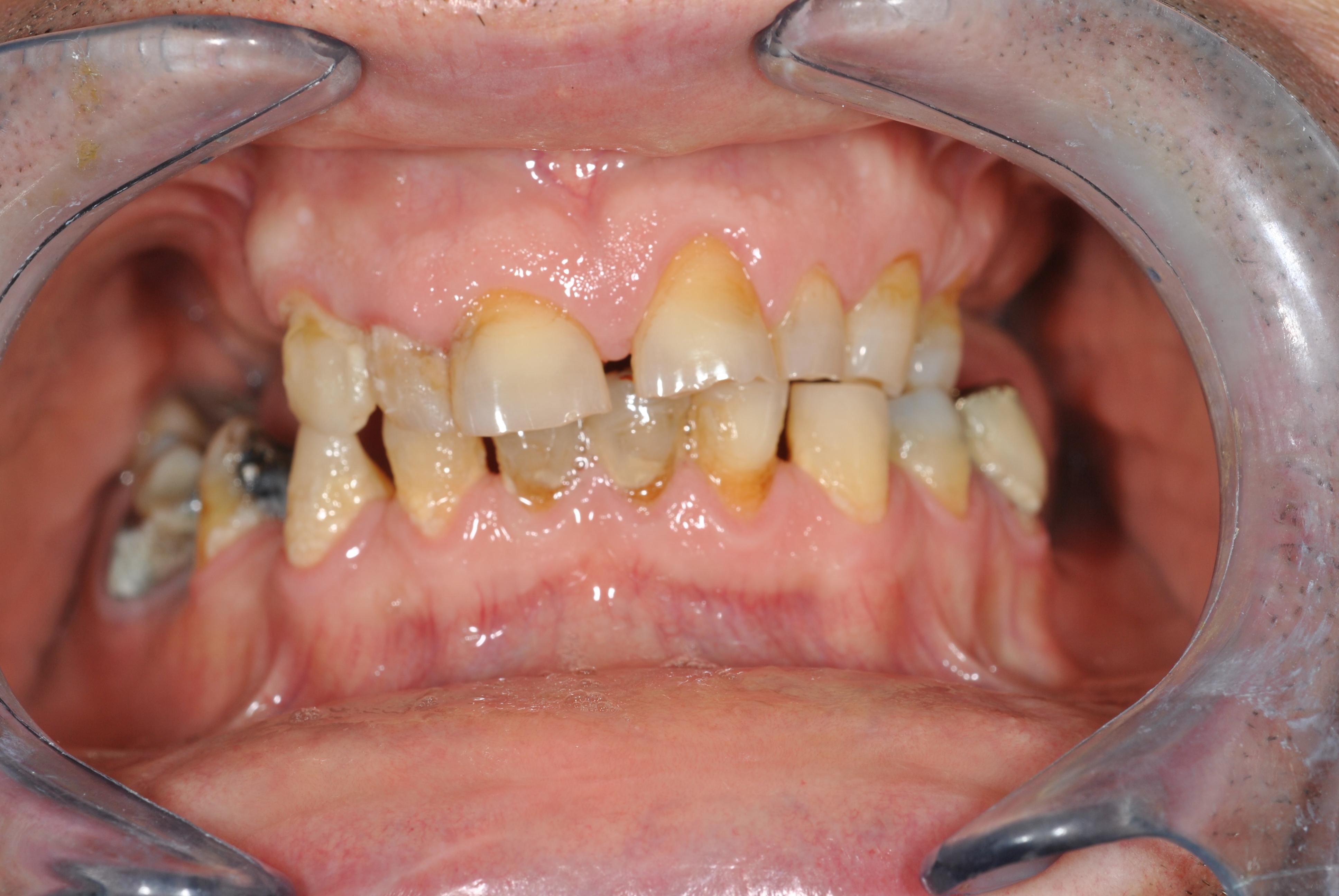 Caso compleso di ripristino dell'estetica e funzionalita' orale