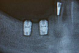 Impianti corti di lunghezza inferiore agli 8 mm