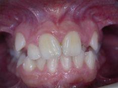 L'ortodonzia nei ragazzi