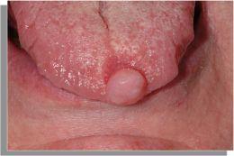 Neurotecheoma della lingua