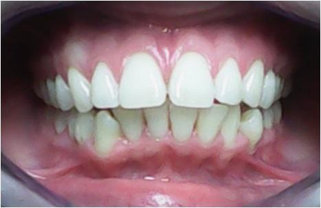Come raggiungere il successo con le mascherine ortodontiche