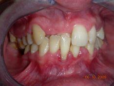 Affollamento dentario in paziente adulto