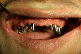 Riabilitazione arcata dentaria superiore