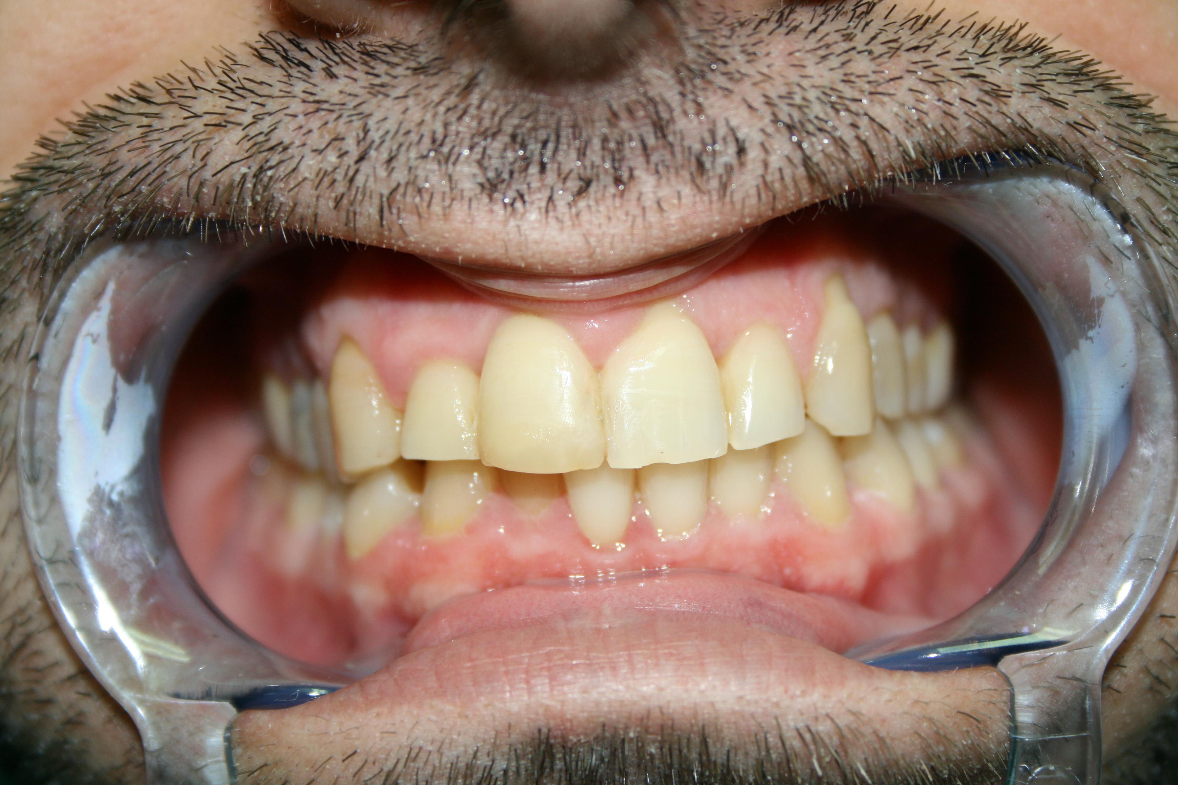 Fccetta dente 1.1