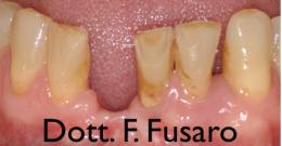 Implantologia nei settori frontali