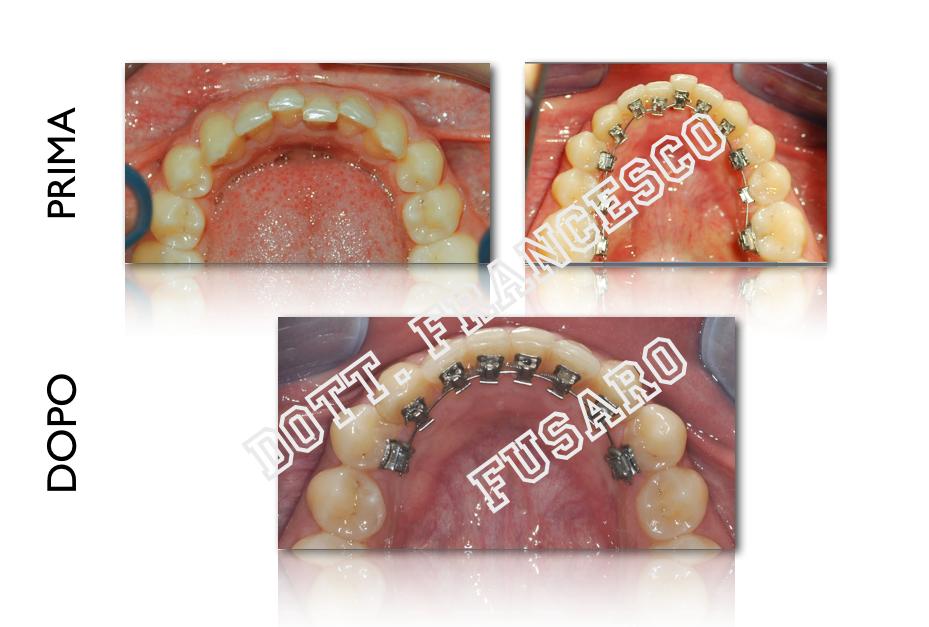 L'ortodonzia linguale e l'estetica in ortodonzia