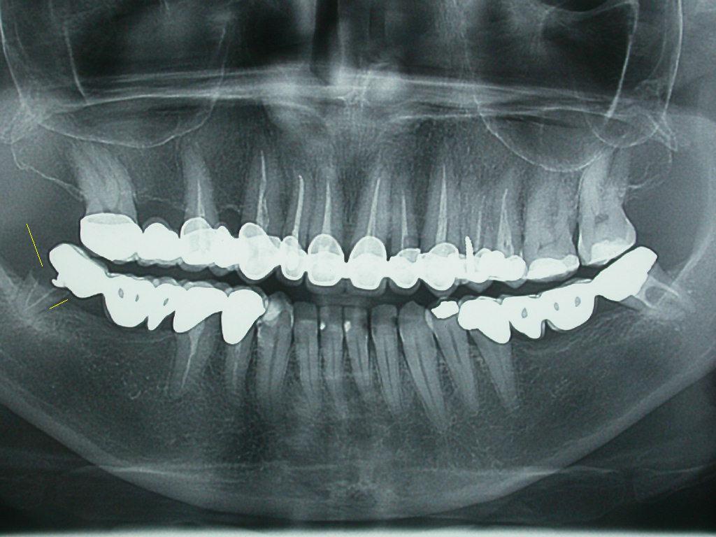 Bonifica e riabilitazione implanto-ptotesica in cresta atrofica mandibolare posteriore